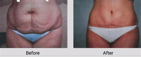 Liposuction Before & After - Oklahoma City, OK: Cosmetic