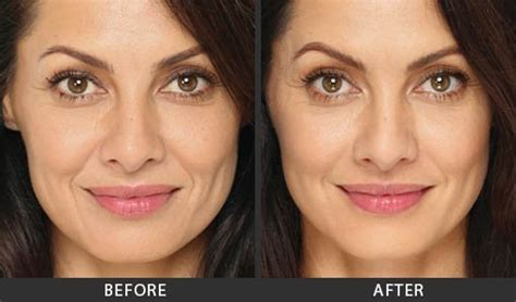 Radiesse Treatment Before and After Photos