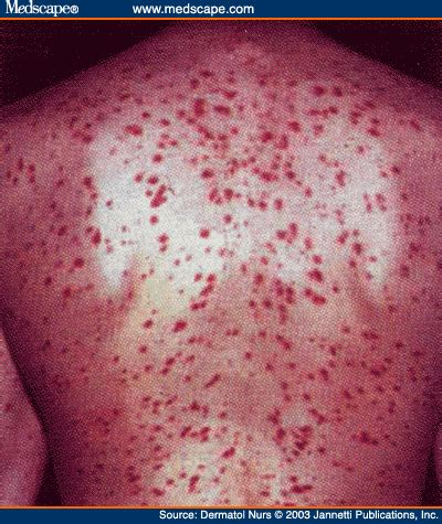 Mastocytosis, Systemic; Systemic Mast-Cell Disease