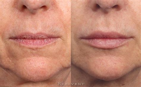 Lip Enhancement with Injectable Fillers • Rejuvent Scottsdale