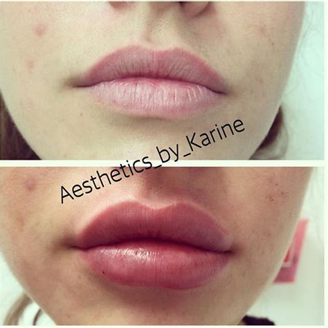 Before After Used 1 syringe of Juvederm Ultra Plus XC #
