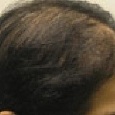 Finasteride in the Treatment of Female Pattern (Androgenic