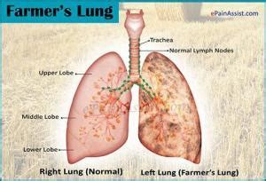 Farmer's Lung - Fungal Infections - AntiinfectiveMeds