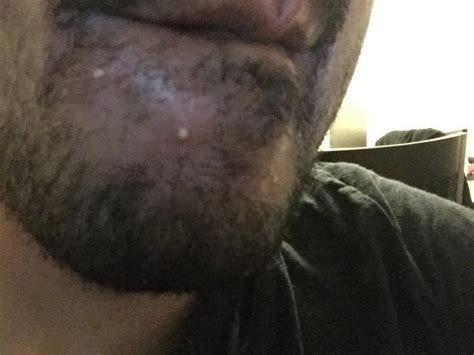 Staph In My Nose Caused My Pimples - Page 2 - General acne
