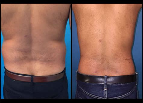 Liposuction Before And After NYC   Liposuction Results